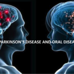 Malattia parodontale e Parkinson: è l'anello mancante nella sua evoluzione?