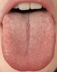 lingua bianca sottile (TCM), grado 2 secondo Miyazaki